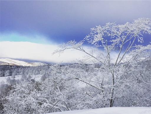 北海道にきてびっくり⑤:雪景色が圧倒的に綺麗 スキー場